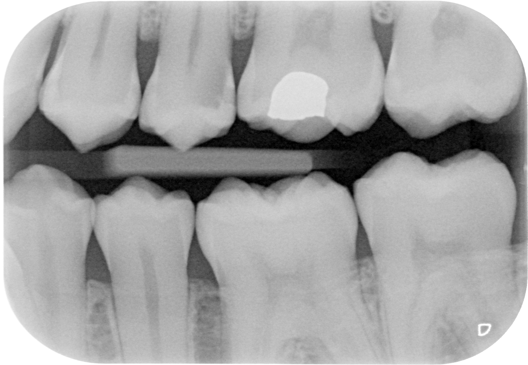 The Bright White Spot is an Amalgam Filling. There is Significant Decay Next to the Filling.