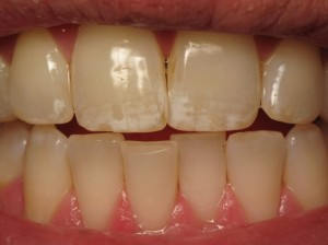 Taken in our office in Encinitas, CA, this image shows a close-up of the cosmetic affects of Fluorosis