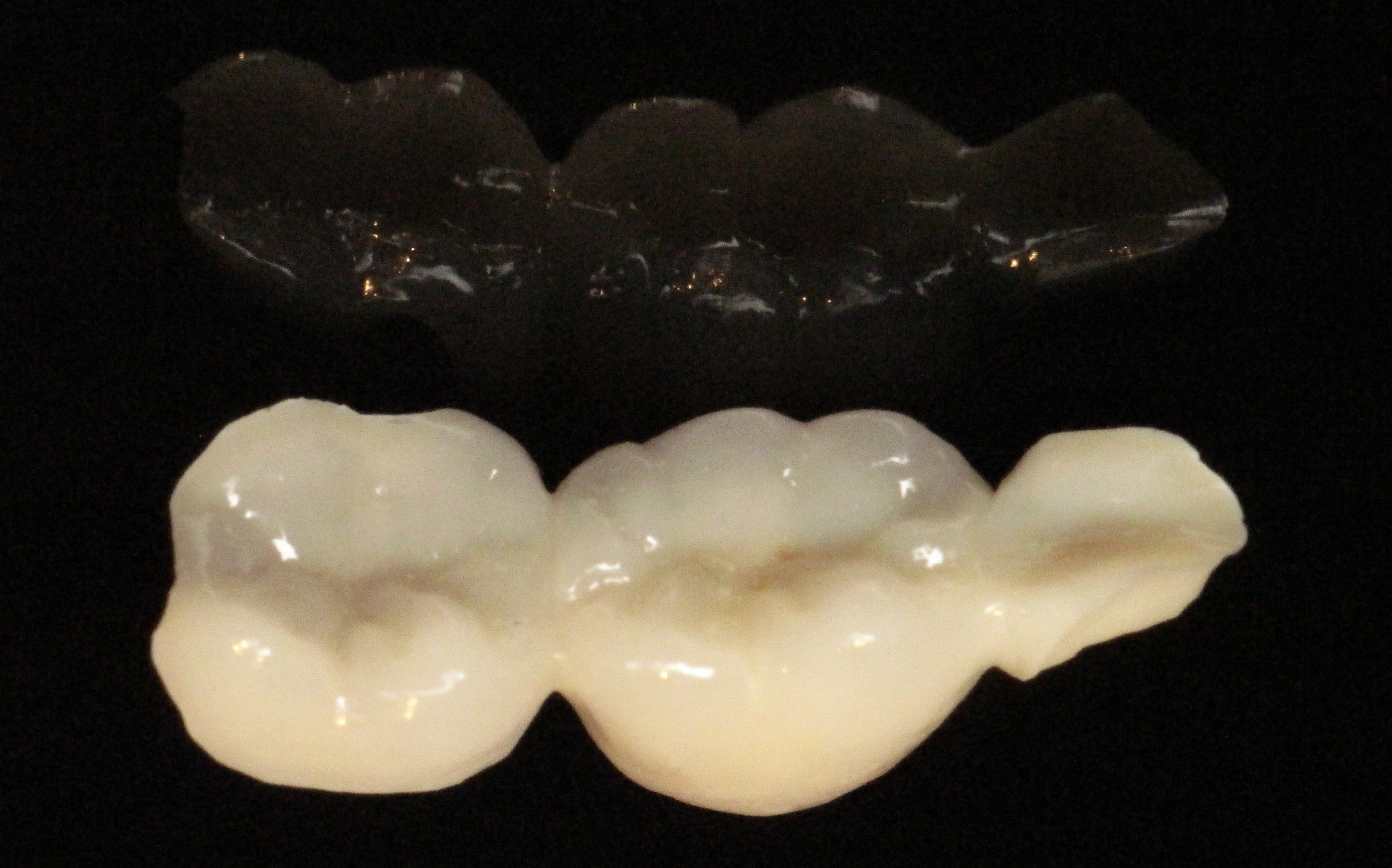 Notice the More Conservative Use of Materials, Which preserves Surrounding Teeth