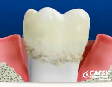 New Research: The Links Between Obesity and Gum Disease