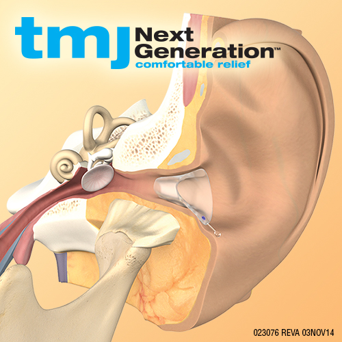 PRESS RELEASE: A Natural Solution to TMJ Problems from San Diego Natural Dentist