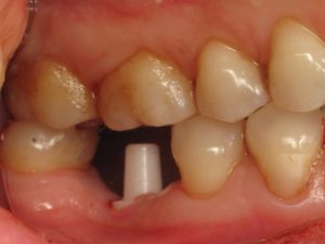 Case 2 Final Implant Buccal