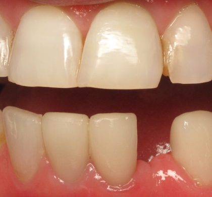 Ceramic Dental Implant #23 Tooth Example
