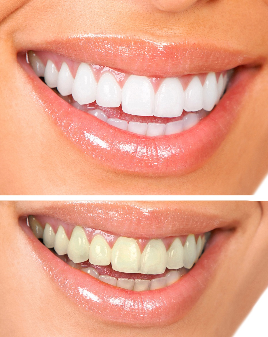 Identifying the Causes of Teeth Stains and the Benefits of Whitening
