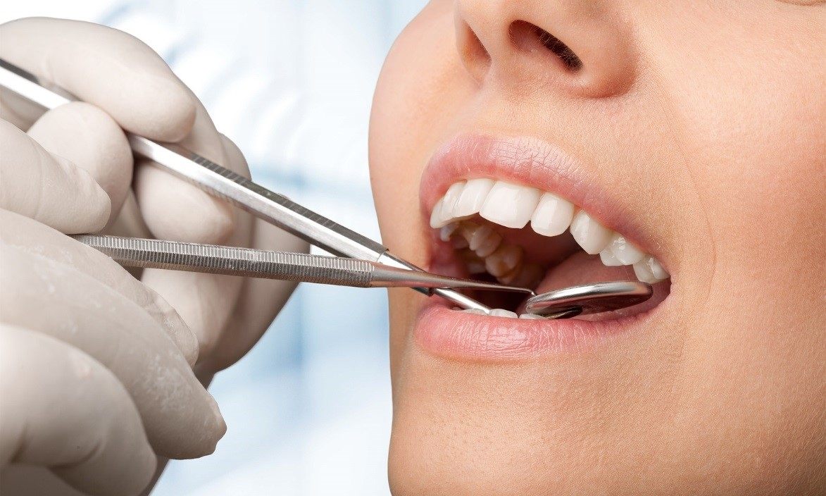 Natural Dentistry: How Your Encinitas Dentist Ensures Holistic Health